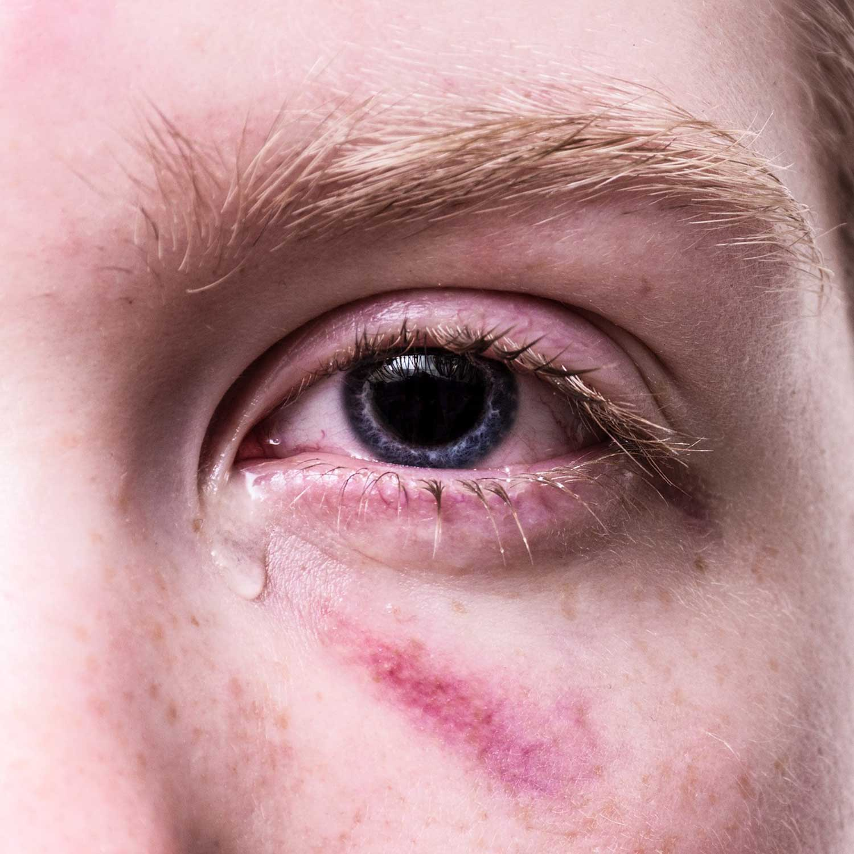 Warum Bekommt Man Rote Augen Bei Mudigkeit Ursache Und Bedeutung Sciodoo